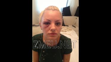 Video Imagini-soc! Alexandra Stan desfigurata, snopita in bataie! Accidentul o inventie! Managerul a bagat-o in spital. Alexandra Stan Beaten